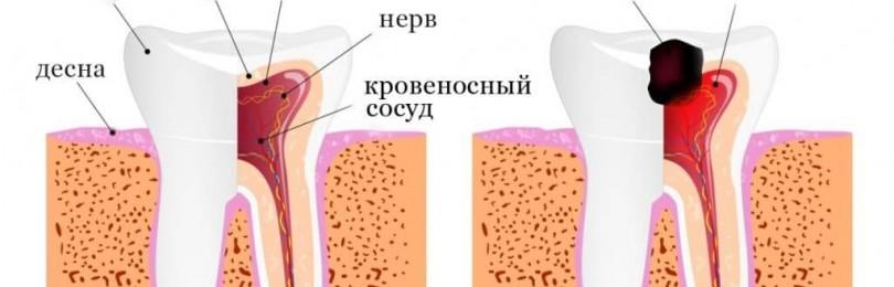 Периодическая или персистирующая боль в области зуба