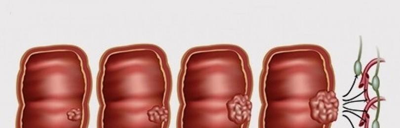 Что такое рак прямой кишки?