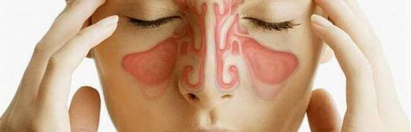 Острые и хронические воспалительные заболевания придаточных пазух носа (синусит, гайморит)