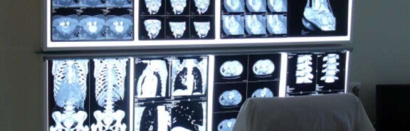 Применение медицинских негатоскопов
