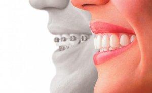 Исправления прикуса: наиболее эффективные методы, применяемые в стоматологии